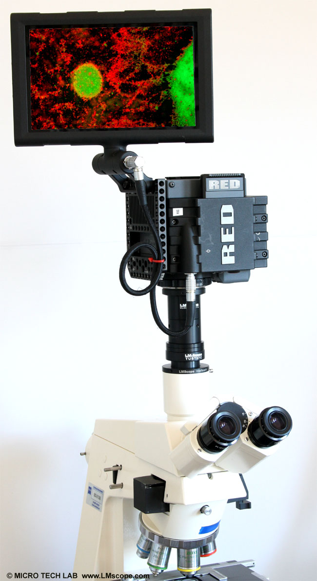 red scarlet camera microscope and LM digital adapter